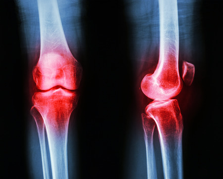 Film x-ray knee APlateral : Osteoarthritis knee (Inflammation at knee) photo