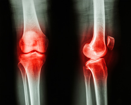 Film x-ray knee APlateral : Osteoarthritis knee (Inflammation at knee) Stock Photo