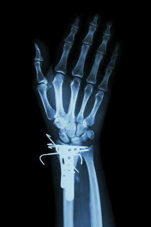 distal: fractura distal del radio (hueso del antebrazo) e internos fijados por K-wire