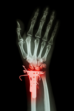 distal: fracture distal radius (forearm bone) and internal fixed by K-wire