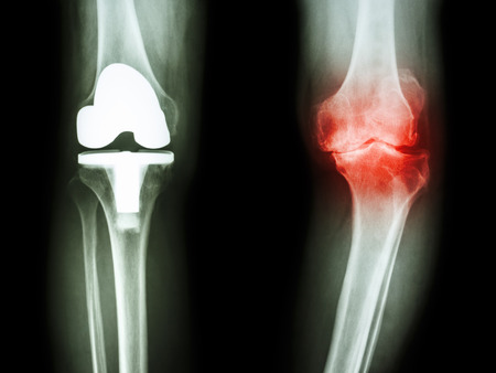film x-ray knee of osteoarthritis knee patient and artificial joint Stock Photo