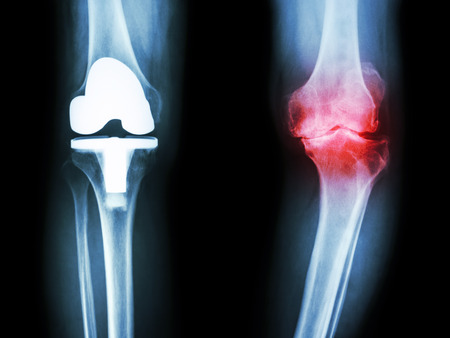 surgery: film x-ray knee of osteoarthritis knee patient and artificial joint Stock Photo