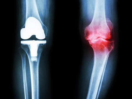 osteoarthritis: pellicola a raggi x del ginocchio del paziente osteoartrite del ginocchio e articolazione artificiale
