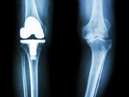 osteoarthritis: pel�cula de radiograf�a de la rodilla del paciente la osteoartritis de rodilla y articulaci�n artificial Foto de archivo