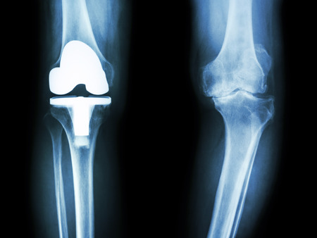 film x-ray knee of osteoarthritis knee patient and artificial joint Archivio Fotografico