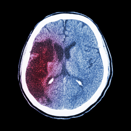 CT brain : show Ischemic stroke (hypodensity at right frontal-parietal lobe) photo
