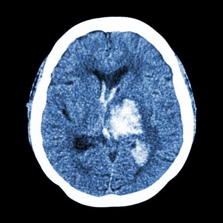 tomography: CT brain : show left thalamic hemorrhage (Hemorrhagic stroke)