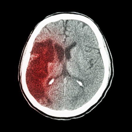 CT brain : show Ischemic stroke (hypodensity at right frontal-parietal lobe) Reklamní fotografie