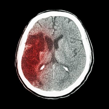hemorragia: CT cerebro: mostrar ictus isqu�mico (hipodensidad a la derecha del l�bulo frontal-parietal)
