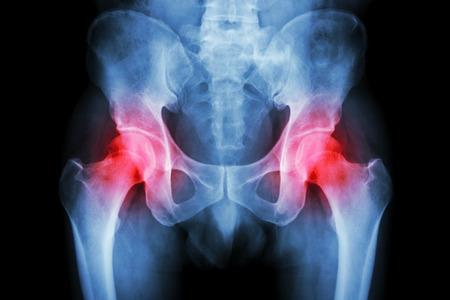 Film x-ray pelvis and arthritis both hip Stock Photo