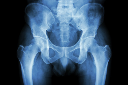 perineum: Film x-ray normal pelvis Stock Photo