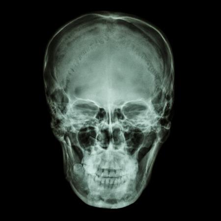thai people: X-ray normal asian skull (Thai people)