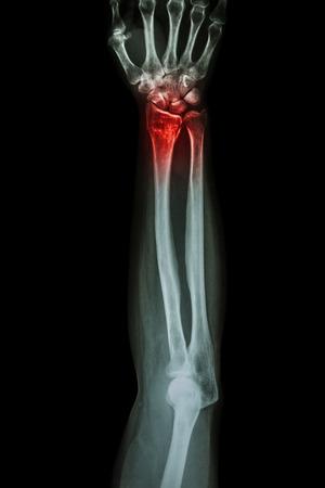 Fracture distal radius (wrist bone) ,(Colles