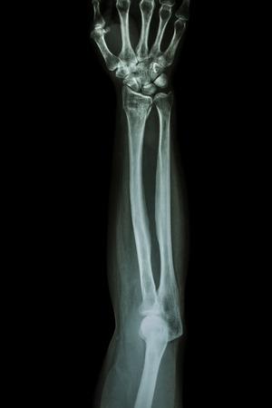 distal: Fracture distal radius (wrist bone) ,(Colles