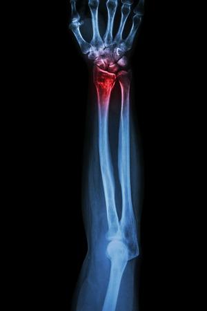 fracture arm: Fracture distal radius (wrist bone) ,(Colles
