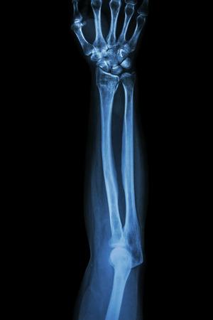 distal: Fractura distal del radio (hueso de la mu�eca), (Colles