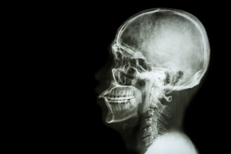 X-ray asian skull and blank area at left side photo