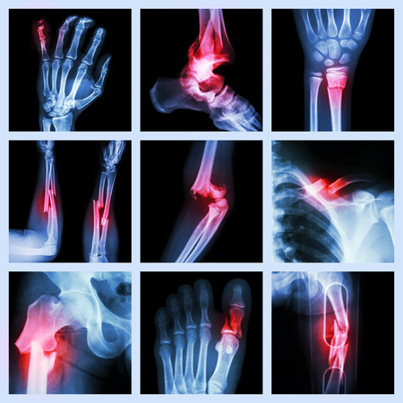 anatomy leg: Collection of bone fracture Stock Photo