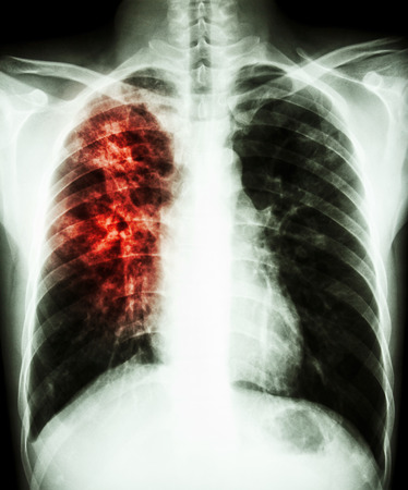 infiltration: film chest x-ray PA upright : show interstitial infiltration at right lung due to mycobacterium tuberculosis infection (Pulmonary tuberculosis)