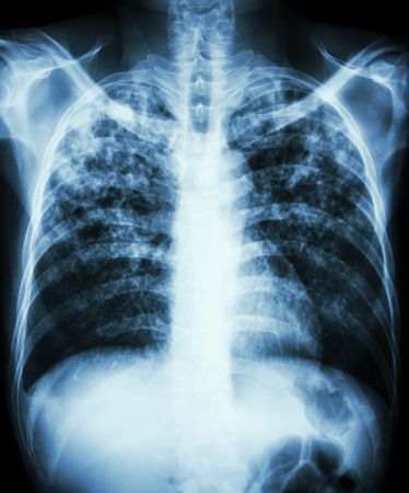 Pulmonary tuberculosis  Film chest x-ray show interstitial infiltration both lung due to mycobacterium tuberculosis infection