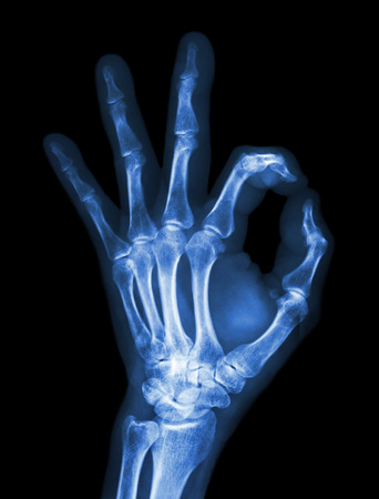 X-ray hand with OK symbol Stock Photo