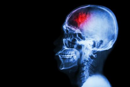 """""""스트로크""""(뇌 혈관 사고). 왼쪽에있는 스트로크와 빈 영역 측면 필름 X 선 두개골"""