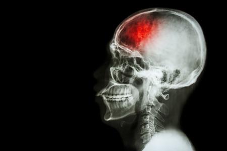 """""""Stroke"""" (cerebrovasculair accident). X-ray film schedel laterale met een beroerte en lege ruimte aan de linkerkant"""