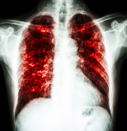 infiltration: film chest x-ray show interstitial infiltrate both lung due to Mycobacterium tuberculosis infection (Pulmonary Tuberculosis) Stock Photo