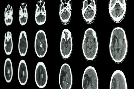 film CT scan of brain show ischemic stroke and hemorrhagic stroke photo