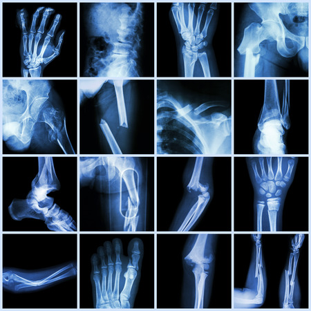 Collection X-ray multiple bone fracture (finger,spine,wrist,hip,leg,clavicle,ankle,elbow,arm,foot) 版權商用圖片 - 31823791
