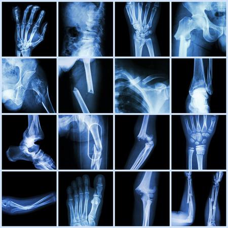 fractura: De rayos X Colección múltiples fracturas óseas (dedos, columna vertebral, muñeca, cadera, piernas, clavícula, tobillo, codo, brazo, pie) Foto de archivo
