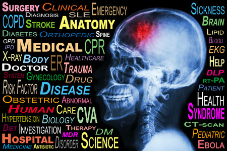 X-ray skull and Stroke and Medical word cloud photo