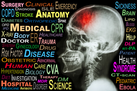 X-ray skull and Stroke and Medical word cloud