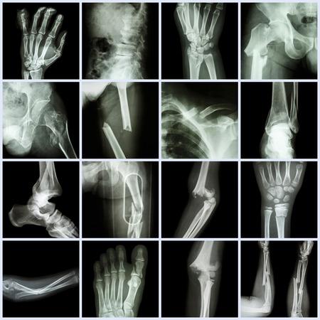 hip fracture: De rayos X Collection m�ltiples fracturas �seas (dedos, columna vertebral, mu�eca, cadera, piernas, clav�cula, tobillo, codo, brazo, pie)
