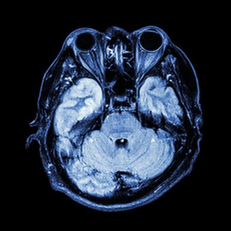 RM Cerebral: Mostrar Parte Inferior Del Cerebro (cerebelo, Lóbulo ...