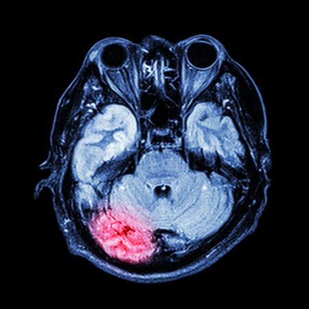 l�bulo: RM cerebral: mostrar parte inferior del cerebro (cerebelo, l�bulo temporal del cerebro, el tronco cerebral, ocular, seno etmoidal, estructura del cr�neo)