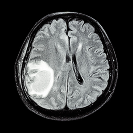 x mass: MRI brain : show brain tumor at right parietal lobe of cerebrum