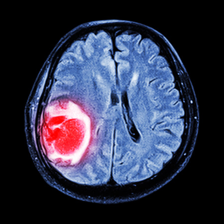MRI brain : show brain tumor at right parietal lobe of cerebrum Stock Photo - 31823661
