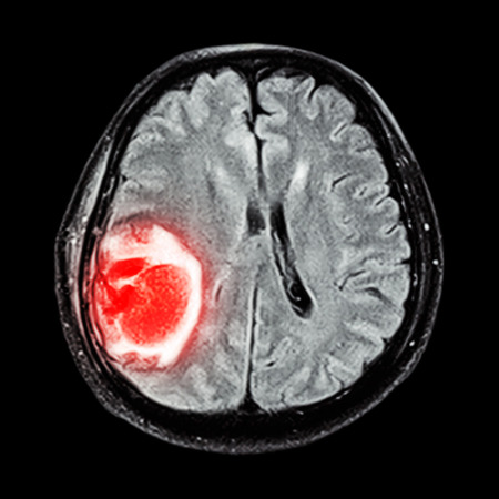 MRI brain : show brain tumor at right parietal lobe of cerebrum photo