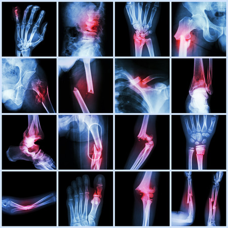 fracture arm: Collection X-ray multiple bone fracture (finger,spine,wrist,hip,leg,clavicle,ankle,elbow,arm,foot)