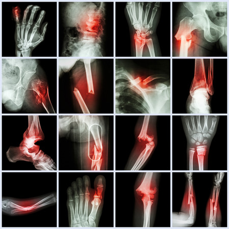 Collection X-ray multiple bone fracture (finger,spine,wrist,hip,leg,clavicle,ankle,elbow,arm,foot) photo