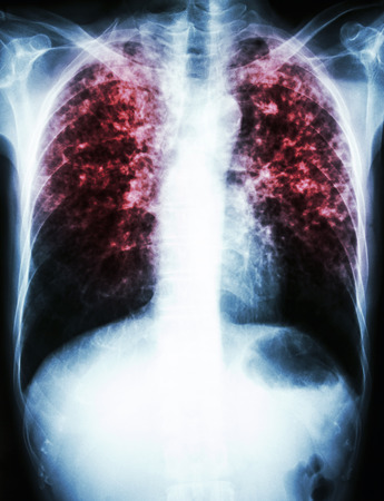 human infection: film chest x-ray show interstitial infiltrate both lung due to Mycobacterium tuberculosis infection (Pulmonary Tuberculosis) Stock Photo