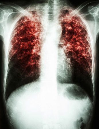 lung disease: film chest x-ray show interstitial infiltrate both lung due to Mycobacterium tuberculosis infection (Pulmonary Tuberculosis) Stock Photo