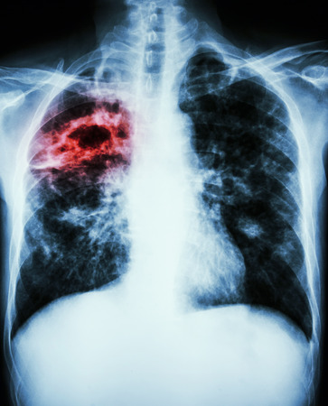 infiltration: film chest x-ray show cavity at right lung,fibrosis & interstitial & patchy infiltrate at both lung due to Mycobacterium tuberculosis infection (Pulmonary Tuberculosis) Stock Photo