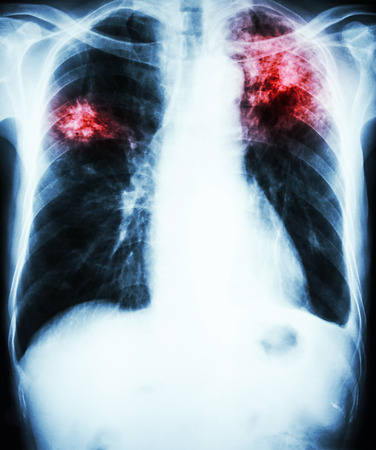 infiltration: film chest x-ray show alveolar infiltrate at left upper lung and right middle lung due to Mycobacterium tuberculosis infection (Pulmonary Tuberculosis)