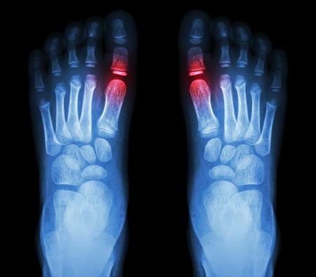 rheumatoid: Rheumatoid arthritis , Gouty arthritis    X-ray child\\ Stock Photo