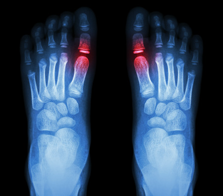 black toes: Rheumatoid arthritis , Gouty arthritis    X-ray child\\ Stock Photo