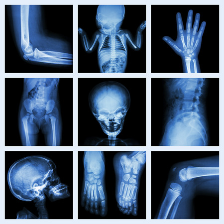 neonatal: Collection X-ray part of child