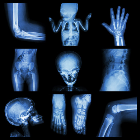 sick kid: Collection X-ray part of child