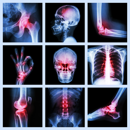 Collection X-ray and multiple injury photo
